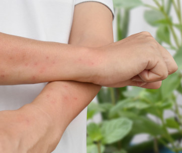 10 best ways to treat mosquito bites