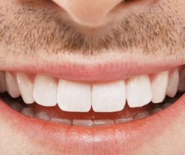 how to banish sensitive teeth & bleeding gums