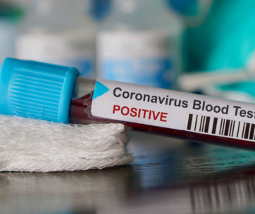how to prevent the spread of the coronavirus
